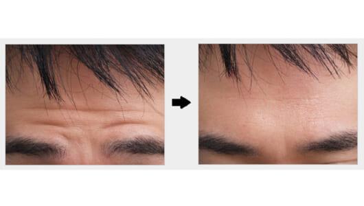オトコも美容整形の時代!?  高須クリニック公認・男性アンチエイジング施術ランキング