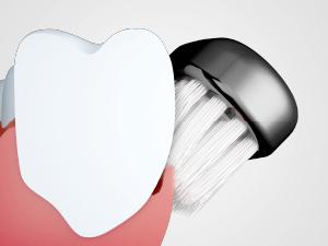 ↑手では再現しにくい微細かつ高速な音波振動で、歯周ポケットの原因菌をかき出します