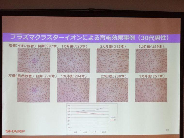 ↑少々わかりにくいが、30代男性の頭皮の写真比較。上列はプラズマクラスターの照射部位
