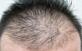 薄毛治療は関東より関西の人の方が積極的!? 日本全国の頭髪事情が明らかに!