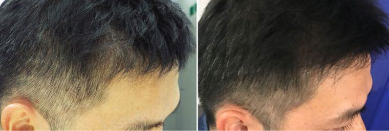 ↑こめかみ上の部分。1か月前(左)と比べて1か月後(右)は