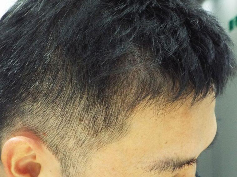↑薄毛が気になるこめかみ上の部分