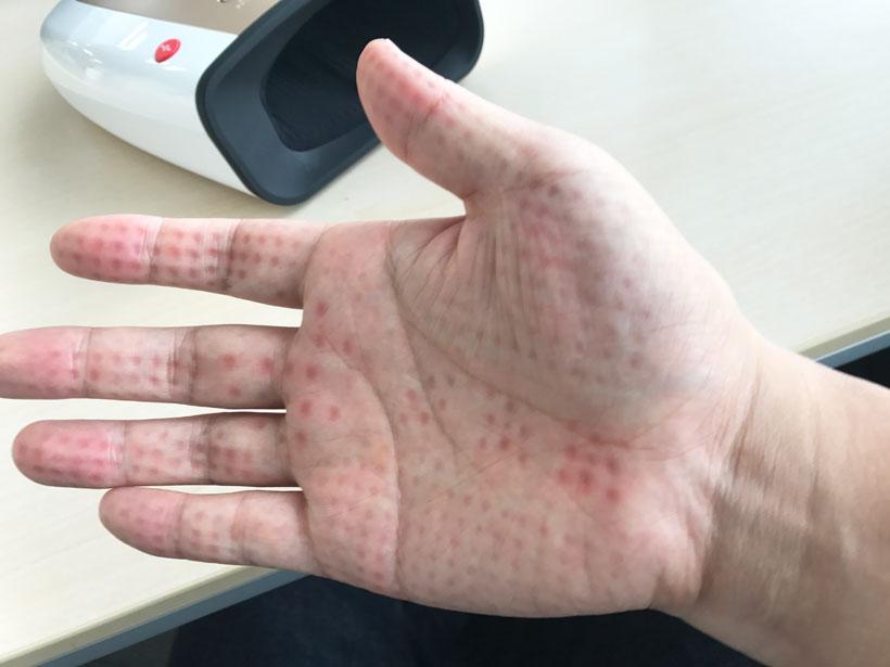 手のひら赤い