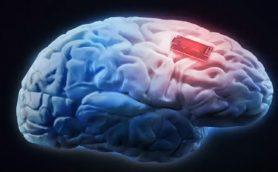 「マトリックス」が現実になりつつある! ヒトの脳にインプラントを埋め込んで記憶力を向上させる実験がついに成功