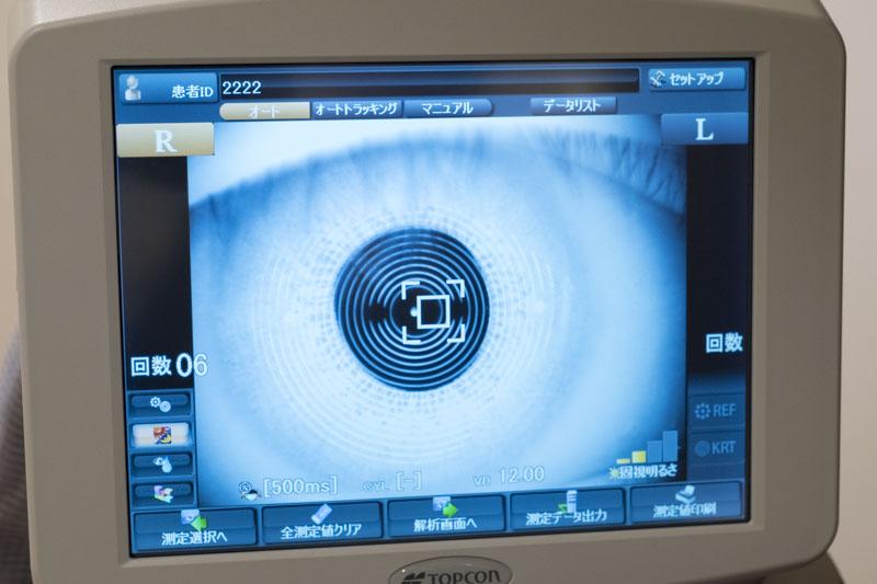 ↑検査機器で暗所・明所で変わる瞳孔の開き方や眼球の歪みを細かく診断