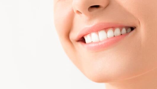 もはや「歯のホワイトニング」は社会人の常識? メリット・デメリットを専門家に聞いてみた