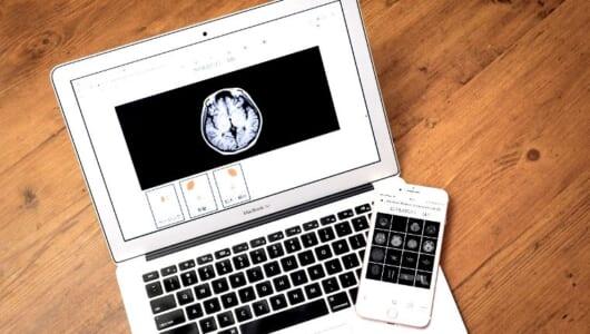 脳疾患のおそれは30-40代にも!「スマート脳ドック」はネット予約・時短・低価格